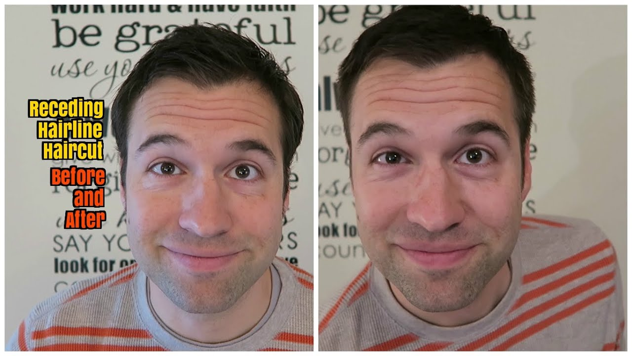 Receding Hairline Before And After Haircut Youtube