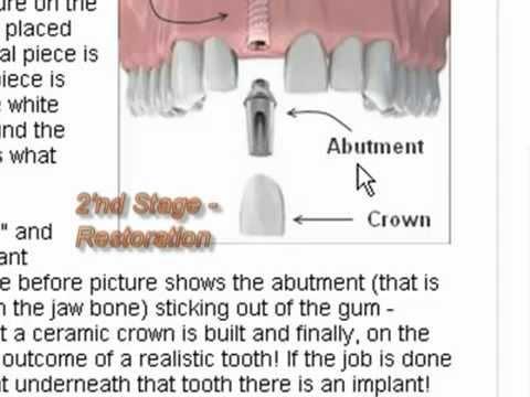 Dental Implant Price