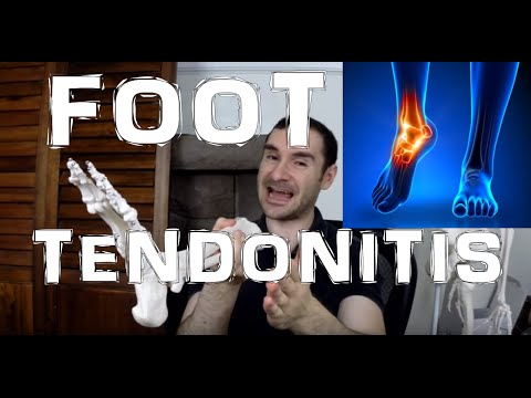 Foot Tendonitis: How It Happens! (Side, Bottom, & Top of Foot Pain)
