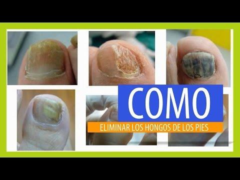 El yodo cura el hongo de la piel