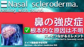 🔴ドイツ振動医学による鼻の強皮症編 Nasal scleroderma by German Oscillatory Medicine.