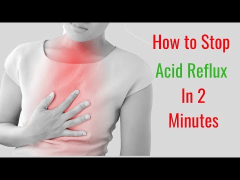 How to Stop Acid Reflux in 2 Minutes