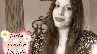 Dermatologie ma lutte contre l'acnée miss tinguette