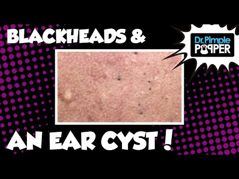 Back Blackheads and an Ear Cyst