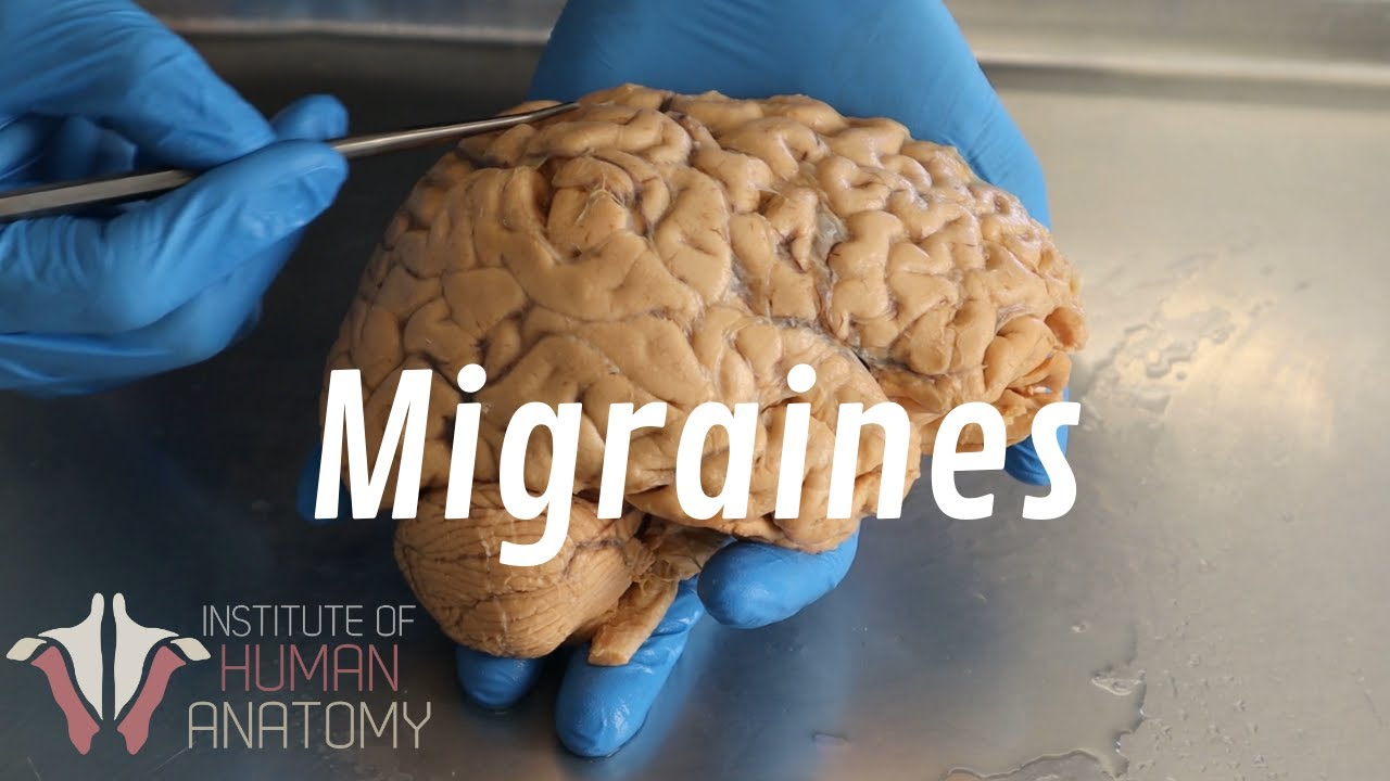 Download What Are Migraines?