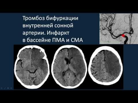 геморрагический и ишемический инсульт - Рефераты - 5ballov