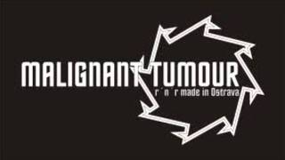 Watch Malignant Tumour High Time To An End video