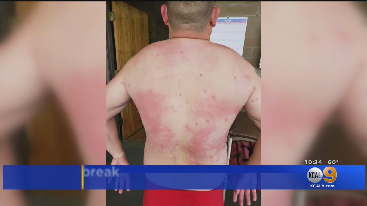 LOS ANGELES, CA: WHITE LIFEGUARD ATTACKED WITH SKIN RASH
