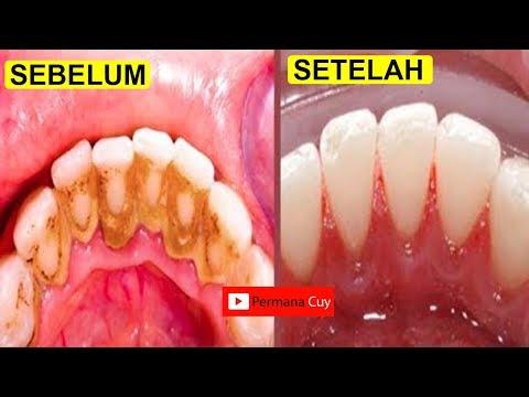 Cara Menghilangkan Karang Gigi Dalam 5 Menit Tanpa Harus Ke Dokter Gigi