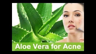 6 Amazing Benefits of Aloe Vera for Hair, Skin and Weight-Loss|Amazing Benefits of Aloe Vera for Hai