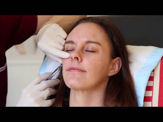 Cheek dermal filler using a cannula at Cityskin clinic in Melbourne