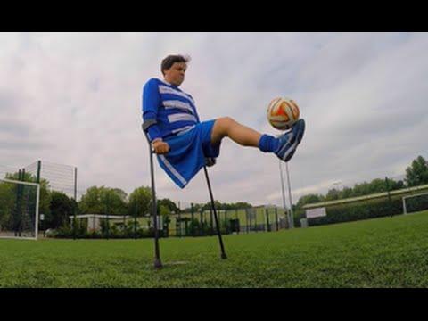 Con una solo gamba ma con il pallone è un campione del calcio | James Catchpole
