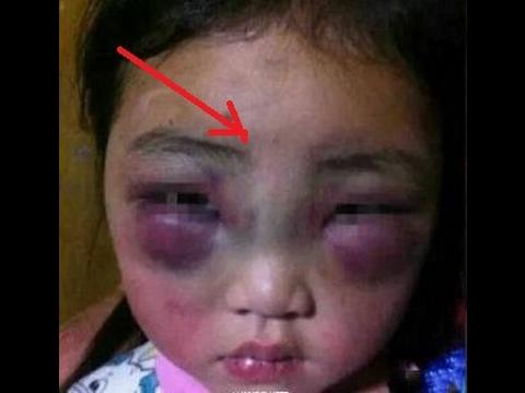 Ibu tiri yang menyiksa anak ini sampai M4T1 dapatkan Azab yang Perih!!!