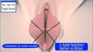 Repeat youtube video labioplasti ameliyatı