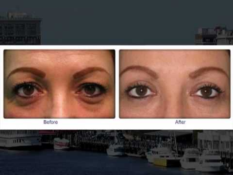 Blepheroplasty in Wilmington (Eyelid Surgery) -- Facial Plastic Surgeon Dr. Deidra Blanks