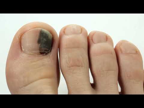 Почему чернеют ногти на больших пальцах ног у женщин, у мужчин причины