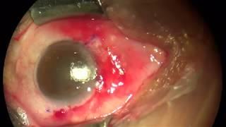 Penyebab Utama Penyakit Mata Berlemak Atau Pterygium & Cara Mengobatinya Secara Alami.