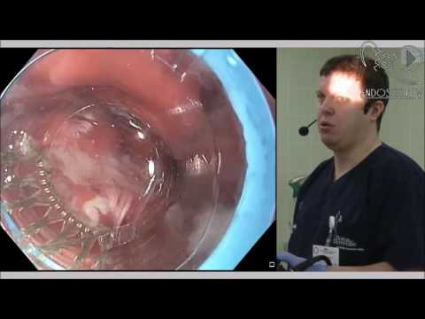 Лигирование варикозно расширенных вен пищевода (запись прямой трансляции из МКНЦ)