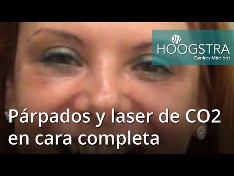Párpados y laser de CO2 en cara completa (18145)
