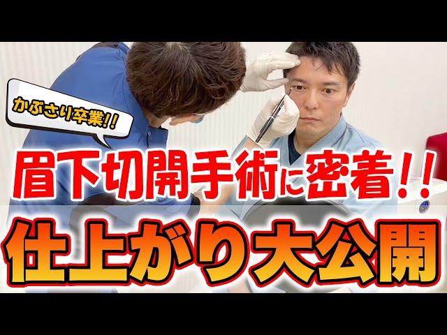 【ビフォーアフターあり】眉下切開手術を実際に受けてみた。