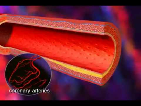 Heart Attack   What Happens During a Heart Attack   Coronary Artery Disease Video