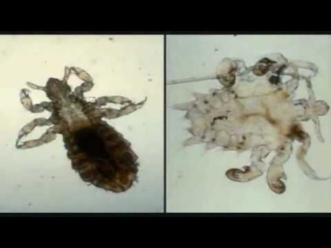 Diatomaceous Earth - Naturally Kill Bed Bugs - YouTube