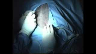Canine Laparoscopic Gastropexy Surgery