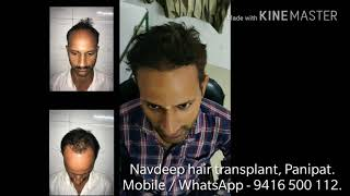 Result of FUE hair transplant at 6 months. Patient from Hisar, Haryana.