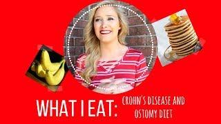 WHAT I EAT: Crohn's Disease and Ostomy Diet Tips