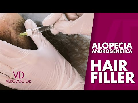 VERODOCTOR #3 - ALOPECIA ANDROGENETICA - HAIR FILLER