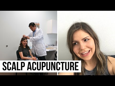 Scalp Acupuncture + New Mexico Trip