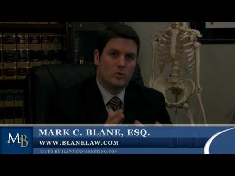 San Diego Personal Injury Lawyer, Accident Lawyer, Win Your Auto Accident Case Video