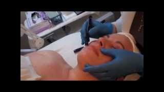 Eye and Lip Peel Demonstration- Ritacca Laser & Cosmetic Surgery Center