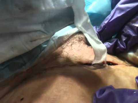 Packing a seroma - incision complication - YouTube