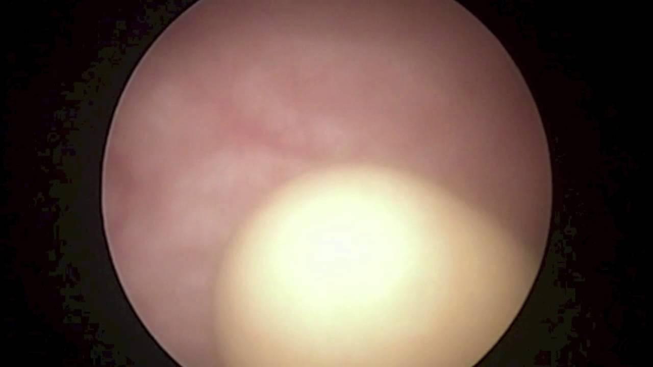 Bladder Stones With Enlarged Prostate
