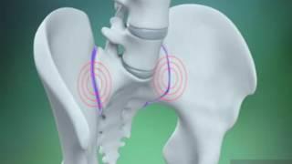 التهاب المفصل العجزي الحرقفي