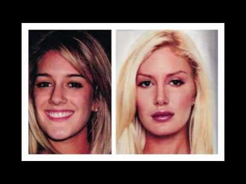 The Evolution of Heidi Montag: From Beauty to Barbie