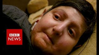 'My life without skin' - BBC News