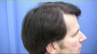 Houston  Hair Transplant - 1.800.859.2266