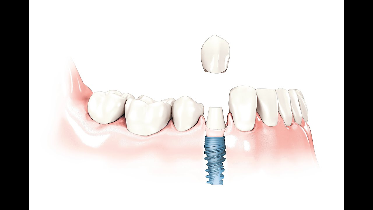 Implant supported dentures in Casper WY – Partial dentures
