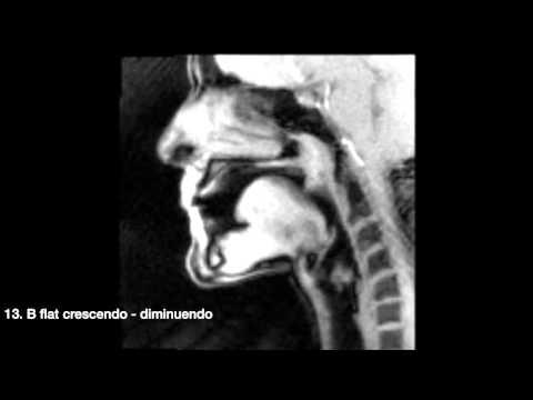 (MRI) Chamber Music with Sarah Willis