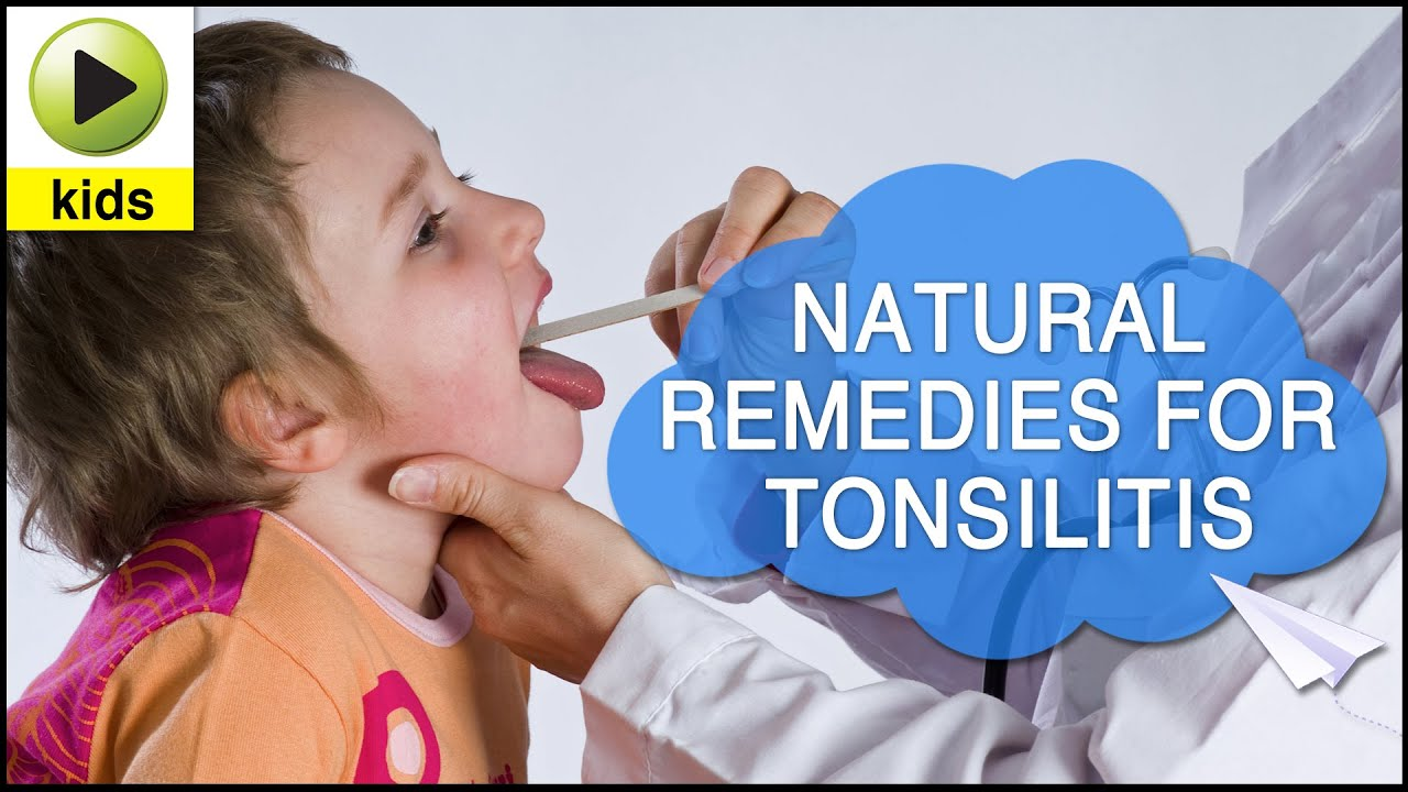 kids health tonsillitis natural home remedies for tonsillitis