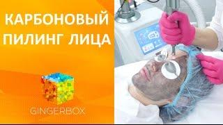 Карбоновый пилинг лица // GINGERBOX