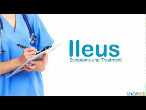 Ileus: Symptoms and Treatment - YouTube