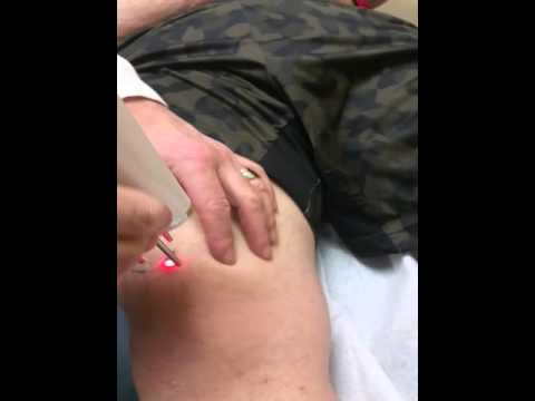 Clean slate enlighten laser tattoo removal lee merritt for Tattoo removal maryland