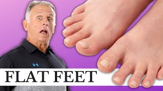 3 Critical Exercises for Pronated, Flat Feet (Causing Foot & Leg Pain?)