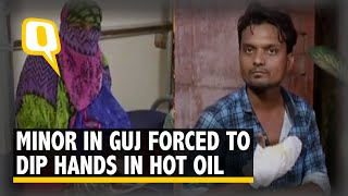 Minor Forced to Dip Her Hands in Boiling Oil to Prove Not Having an Affair in Gujarat