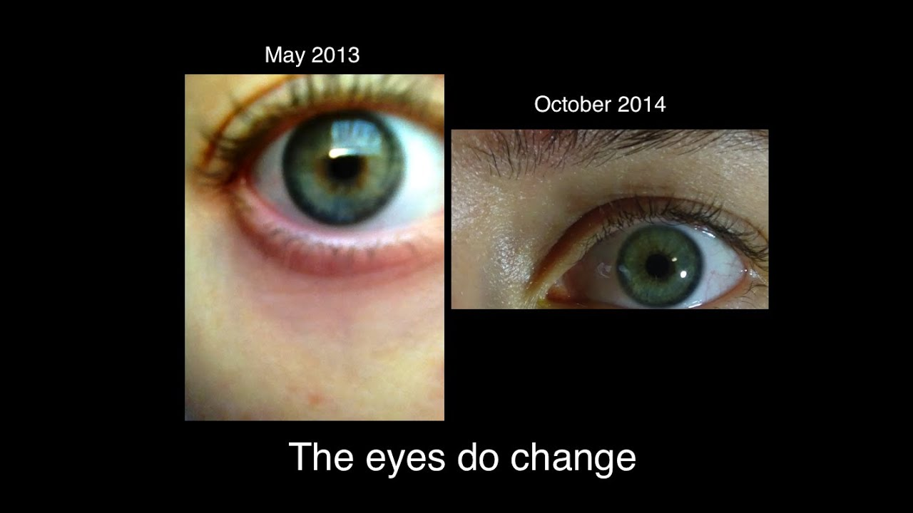 I Answer Your Questions Before After Pic Of My Eyes