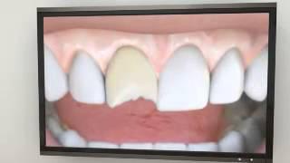 Glendora Cosmetic Dentist | Porcelain Veneers Thumbnail