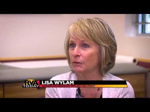 Richmond's NBC12 Discusses Knee Pain Clinical Trial | Active